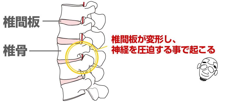 椎間板ヘルニア:椎間板が変形